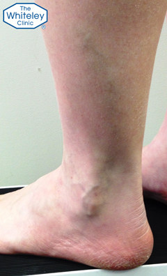 Varicose Veins of the outer lower leg and lateral ankle - CEAP C2