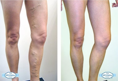 varicose veins treatment before and after