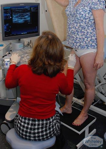 Venous Duplex Scan diagnosis at Whiteley Clinics