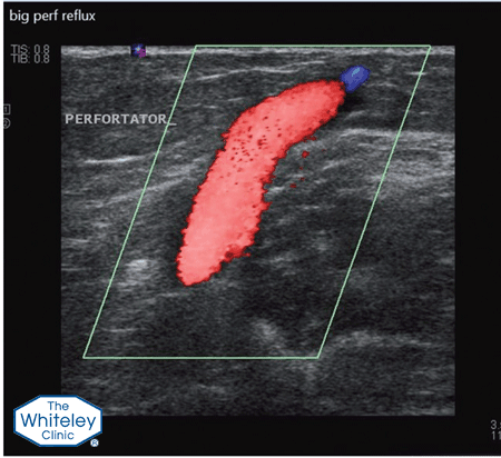 Duplex ultrasound scan showing blood refluxing back out of the deep veins