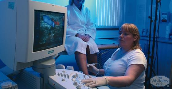 Duplex scanning varicose veins diagnosis - Whiteley Clinics